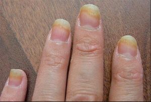 nail-fungal-infections